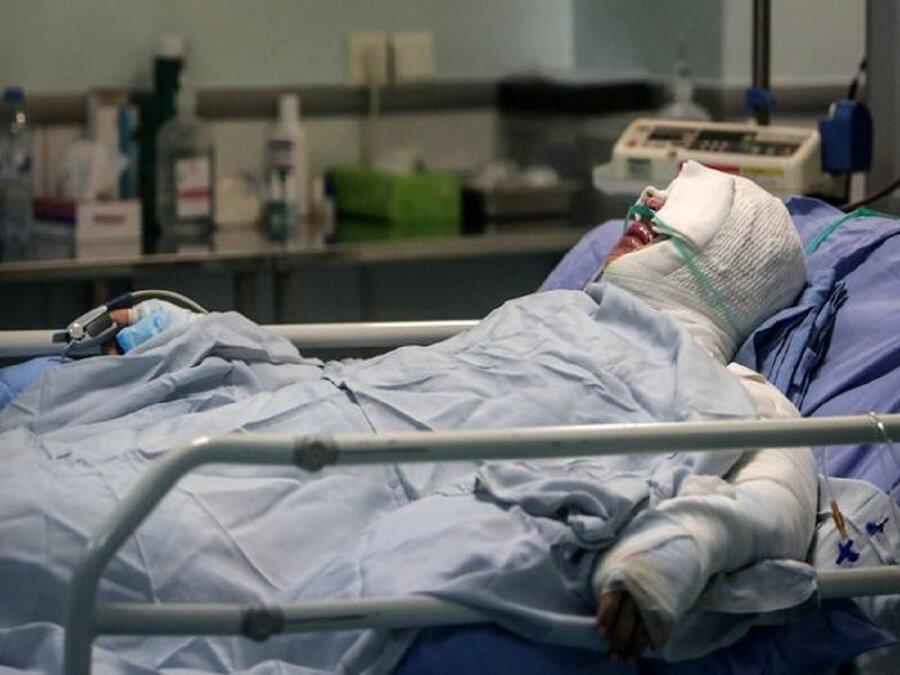 با سوختگی به بیمارستان می روید، با کرونا برمی گشت