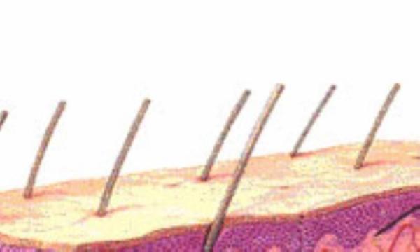 پوست های ترکیبی به پوست هایی گفته می گردد که مخلوطی از پوست های چرب و خشک هستند